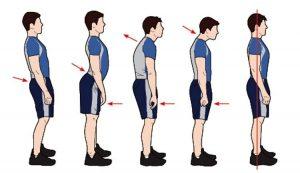 ناهنجاریهای جسمی- مدرسه استعدادیابی