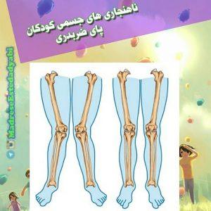 آشنایی با ناهنجاریهای جسمی, پای ضربدری یا x شکل و راه تشخیص آن