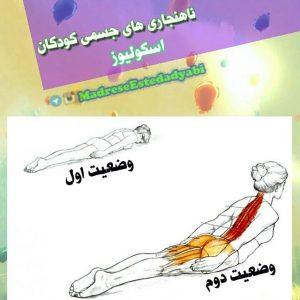 آشنایی با ناهنجاریهای جسمی, اسکولیوز, راه تشخیص آن و تقویت عضلات برای پیشگیری